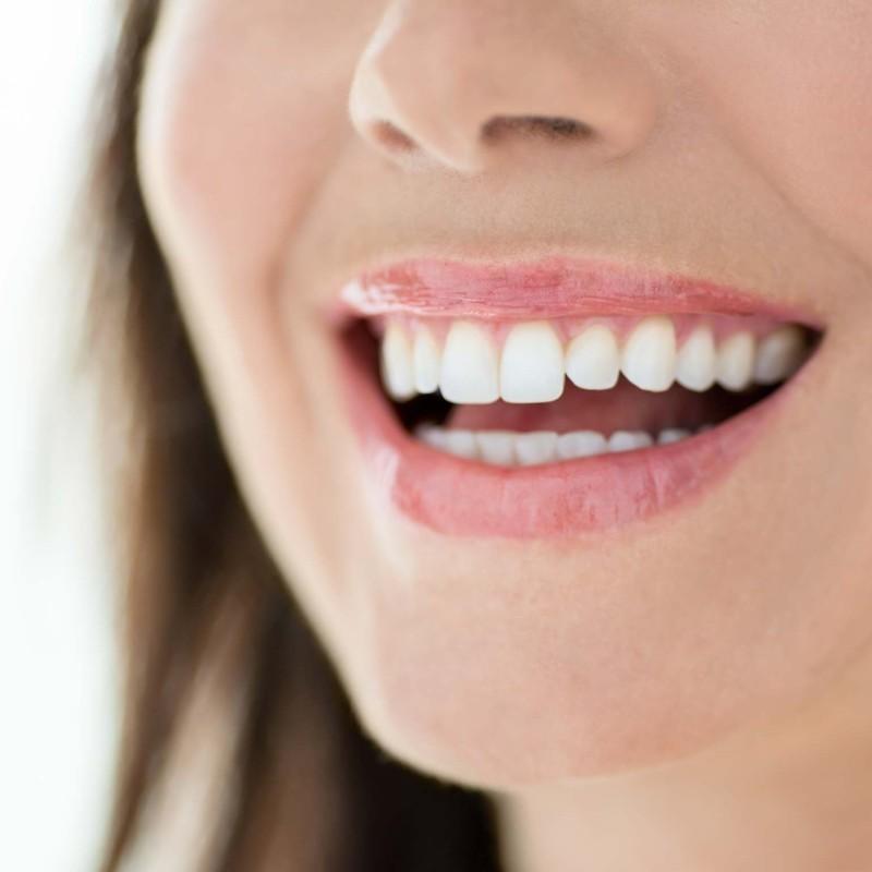 sorriso_finanziamento_cariani